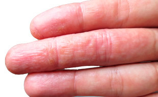 мокнущая экзема на пальцах