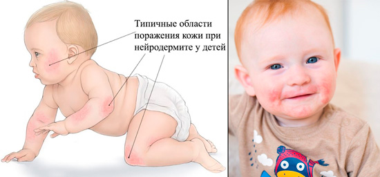 области поражения кожи при нейродермите у детей