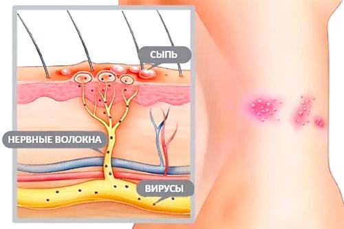 схема поражения кожи вирусом герпеса