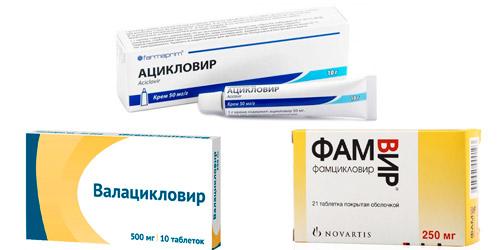 препараты для противовирусной терапии: Ацикловир, Валацикловир, Фамцикловир