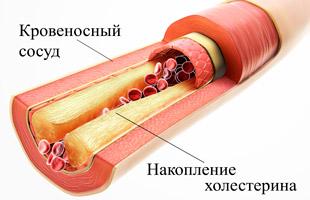 сосуд с холестерином в разрезе