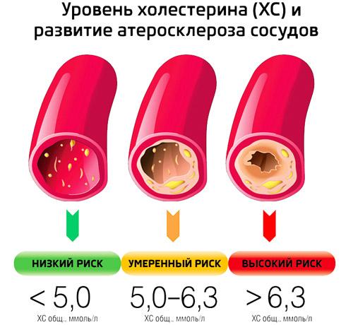 уровни холестерина в крови