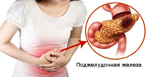 панкреатит - боль в поджелудочной железе