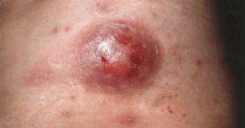 гуммозный сифилид на последней стадии сифилиса
