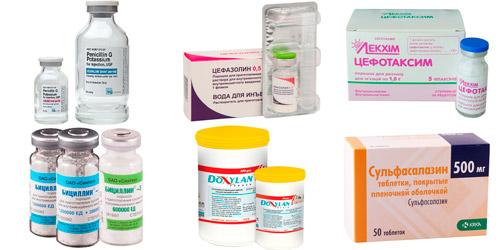 препараты против сифилиса: Пенициллин, Цефазолин, Цефотаксим, Бициллин, Доксилан, Сульфазин