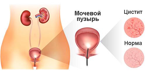 ткани здорового мочевого пузыря и при воспалении