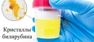 кристаллы билирубина в моче