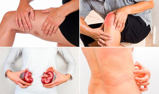 патологии, сопровождающие хронический гепатит: криоглобулинемия, гломерулонефрит, крапивница и д.р.