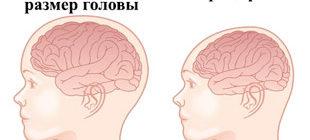размер головы у здорового ребенка и при микроцефалии