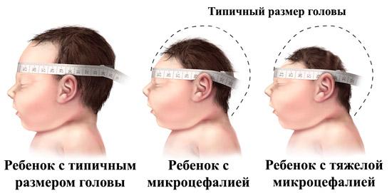 окружность головы у здорового ребенка и с микроцефалией