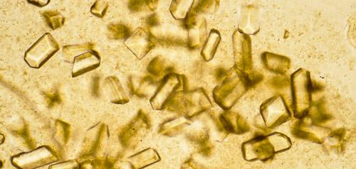 кристаллы мочевой кислоты под микроскопом