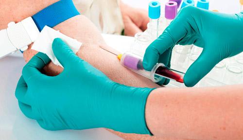 забор крови из вены на анализ
