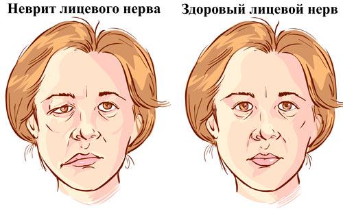 внешнее проявление неврита лицевого нерва
