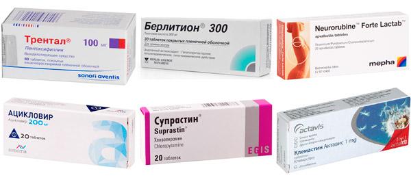 рекомендуемые лекарства: Трентал, Берлитион, Супрастин и др.