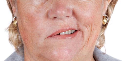 сокращение мимических мышц рта