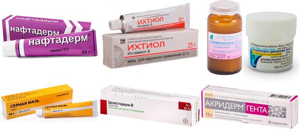 препараты для местного лечения: Нафталановая, Ихтиоловая, Салициловая мази и др.