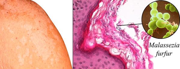 грибок Малассезия фурфур возбудитель пляжной болезни