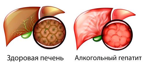 клетки здоровой печени и при алкогольном гепатите