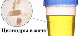 Цилиндры в моче под микроскопом