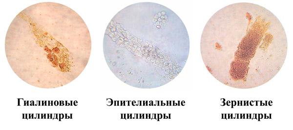 разновидности цилиндров в моче