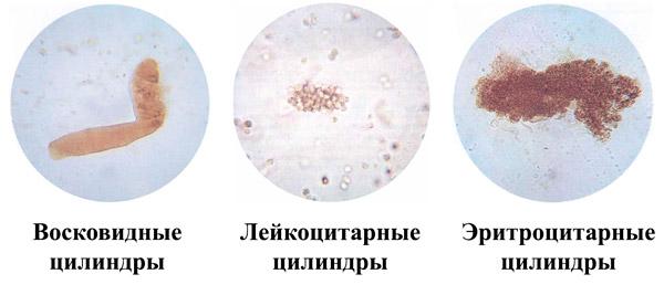 Цилиндры в моче разных видов