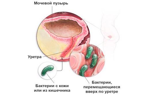 возникновение цистите в результате распространения бактерий