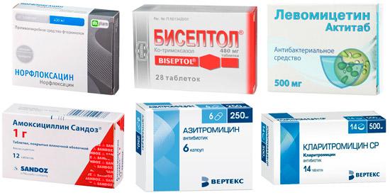 противомикробные препараты при цистите: Норфлоксацин, Бисептол, Левомицетин и др.