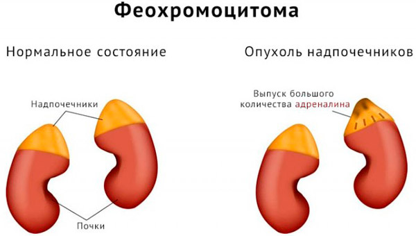 феохромоцитома в надпочечниках