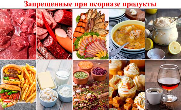 ТОП-10 запрещенных при псориазе продуктов