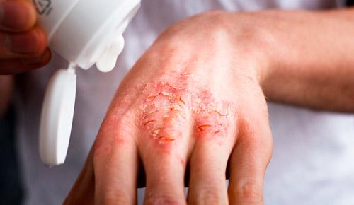 раны на коже при тяжелой форме экземы