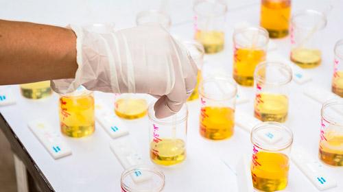аназиз образцов мочи в лаборатории