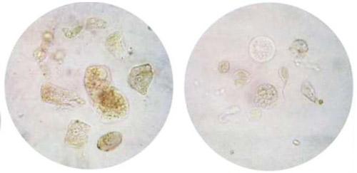 эпителий в моче под микроскопом