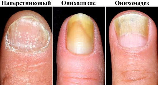 разные виды псориаза ногтей