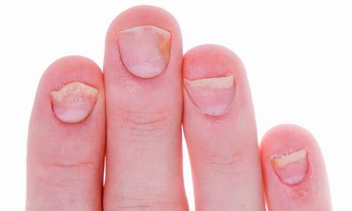 повреждение ногтей псориазом