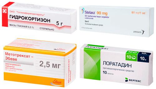 средства для системного лечения: Гидрокортизон, Стелара и др.