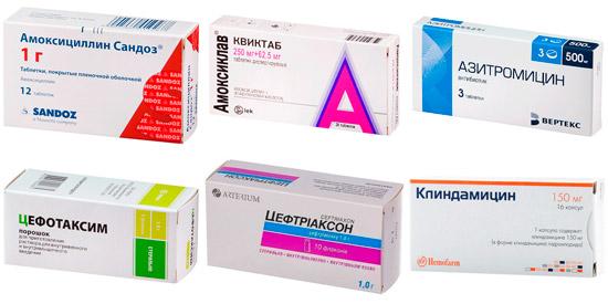 антибиотики для лечения скарлатины: Амоксициллин, Цефотаксим, Клиндамицин и др.