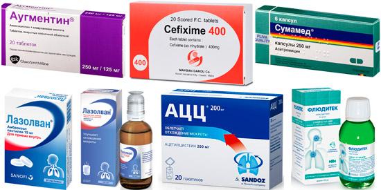 препараты для лечения бронхита курильщика: Аугментин, Сумамед, АЦЦ и др.