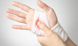 рана на ладони