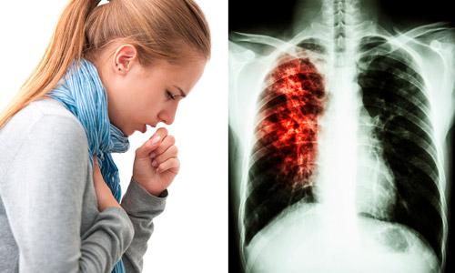 кашель при туберкулезе и рентген легких
