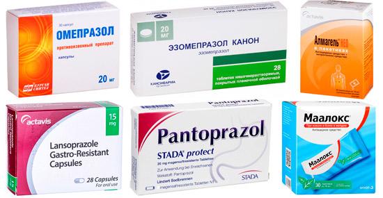 рекомендуемые лекарства от изжоги: Омепразол, Пантопразол, Маалокс и др.