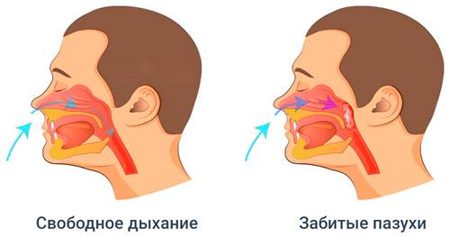 чистыке носовые пазухи и заложенность носа