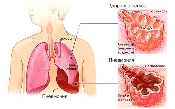 здоровые легкие и воспаление легких