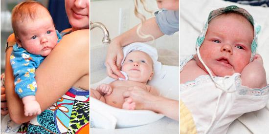 возможные причины мокрой головы малыша: аллергия, нарушение гигиены, диатез
