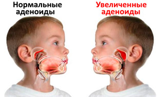 аденоиды у ребенка