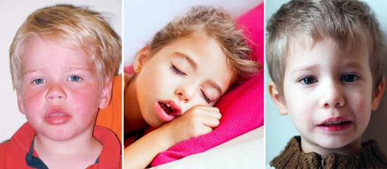 внешний вид ребенка с аденоидами