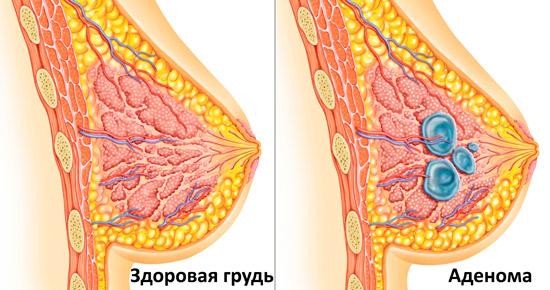 здоровая грудь и аденома