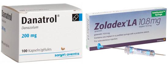 рекомендуемые лекарства: Даназол, Гозерелин