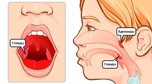 расположение аденоидов в носоглотке