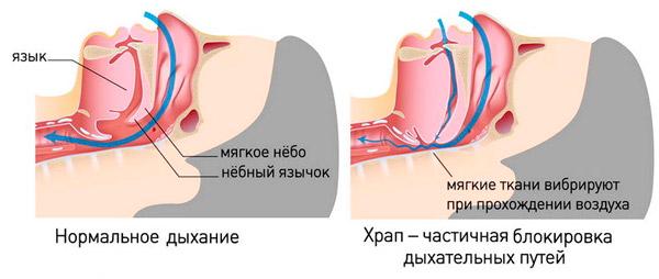 нормальное дыхание и храп