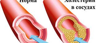 нормальный сосуд и с холестерином